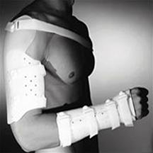 肩∕上肱骨骨折支架